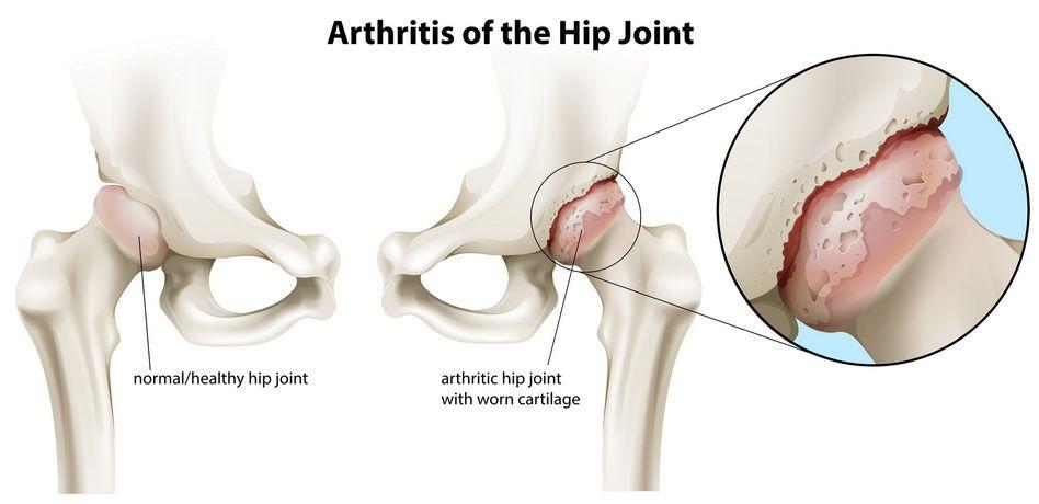 artroza soldului cauzează