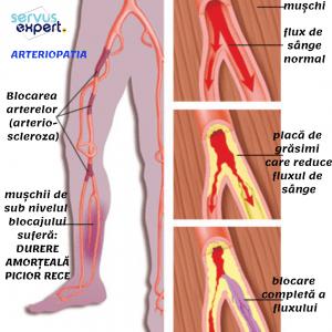 Tratamentul cu dimexid de genunchi durere la gleznă la copii