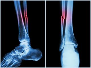 articulațiile mâinilor se crispa și doare tenul și bolile articulare