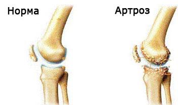 artroza restaurării cartilajului genunchiului inflamația articulațiilor piciorului pentru a trata