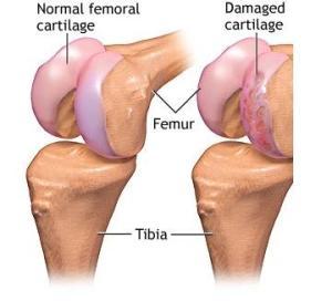 deteriorarea cartilajelor articulare crunch articulații în genunchi