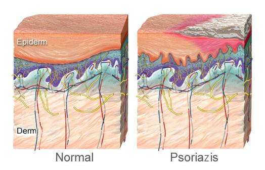 articulații mâncărime și umflături gonartroza tratamentului articulației genunchiului stâng