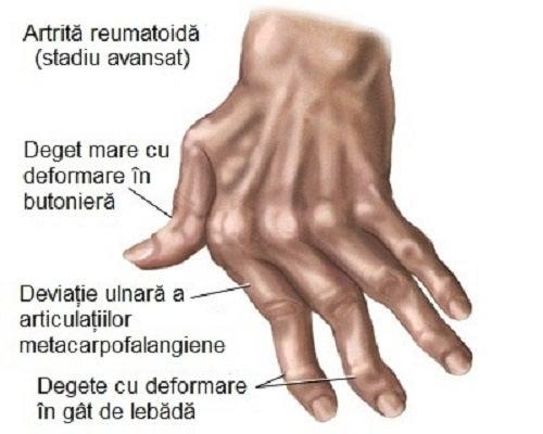 tratarea deformării articulațiilor degetelor