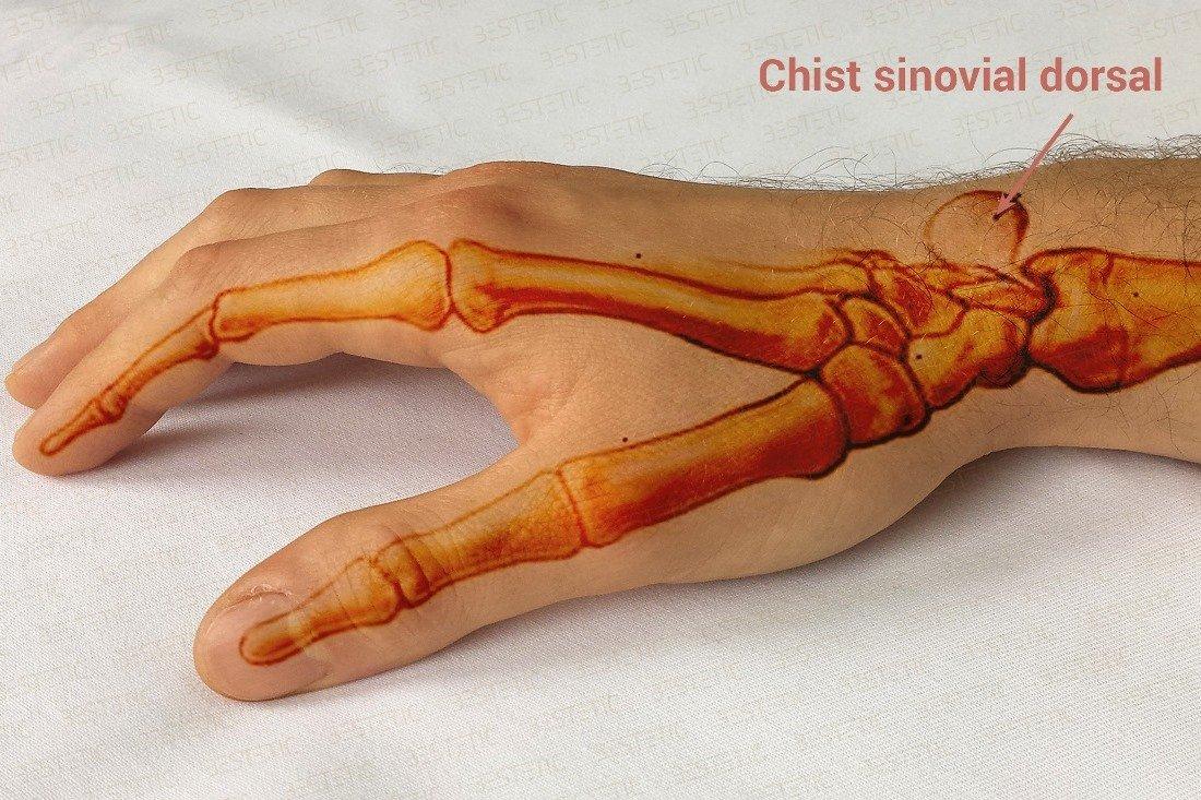 este posibil să alergați cu artrita articulației gleznei ser de tratament articular