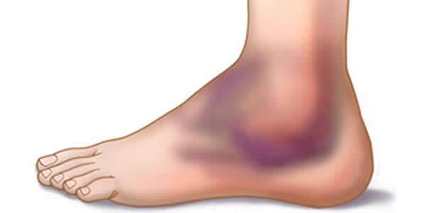 artroza articulațiilor piciorului stâng
