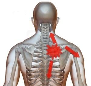 nume de unguente din articulații grade de artroză a articulațiilor șoldului