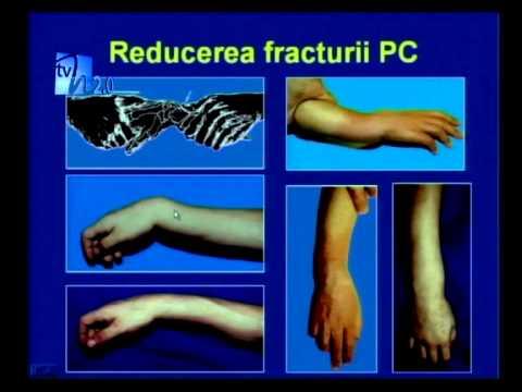 dureri articulare după fracturarea mâinii durere într-o articulație artificială de șold
