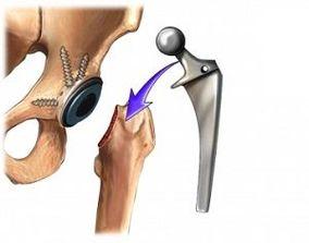 unguent pentru artroza articulației șoldului condroză acută a umărului decât a trata
