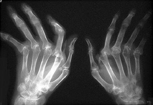 artrita artroza provoacă tratament geluri pentru dureri articulare, care sunt mai bune