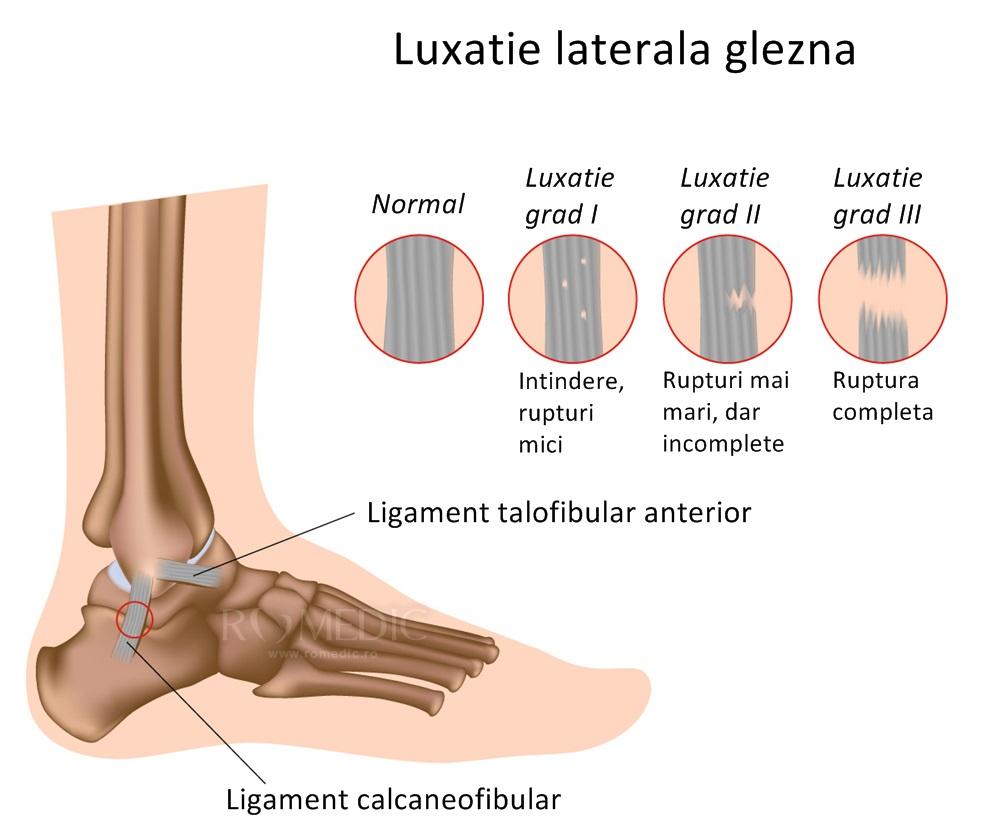 fractură în tratamentul articulației gleznei