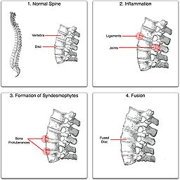 preparat articular și spinal boala ligamentului la încheietura mâinii