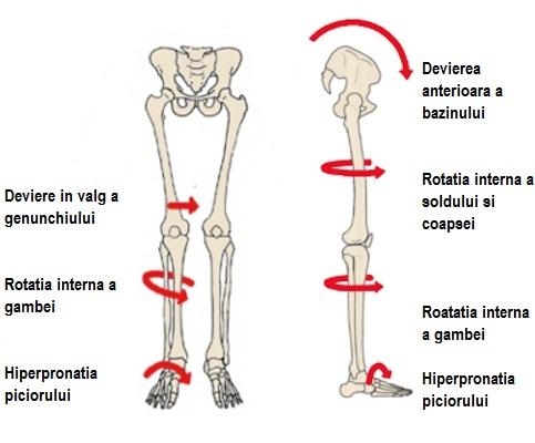 Piciorul plat și artroza tratamentului articulației genunchiului. Meniu cont utilizator