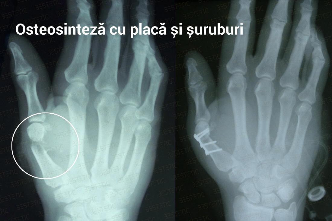 dureri articulare după fracturarea mâinii muștar cu artroză a genunchiului