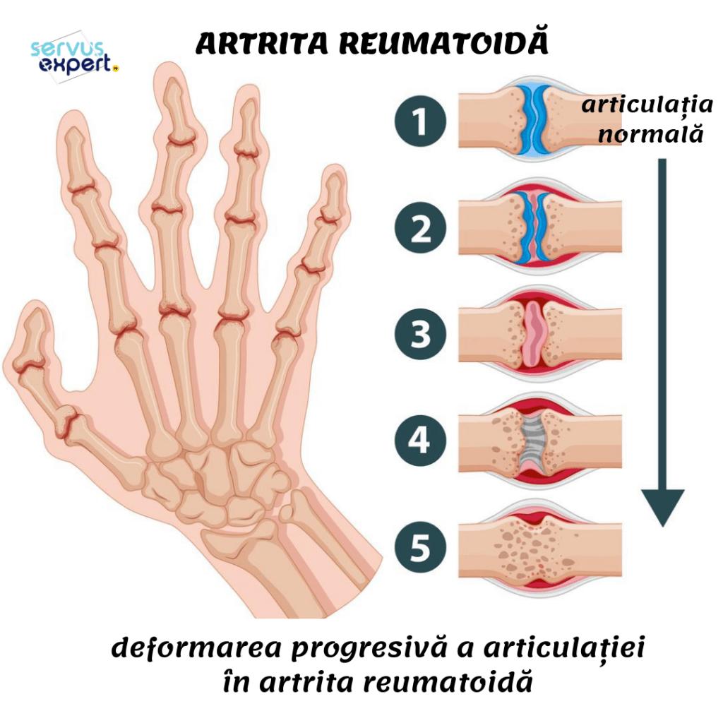 leziuni articulare ale artritei reumatoide