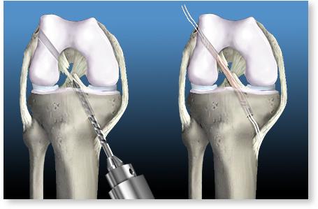 pentru a restabili genunchiul ibuprofen pentru tratamentul artrozei