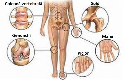 de la dureri severe la nivelul articulațiilor