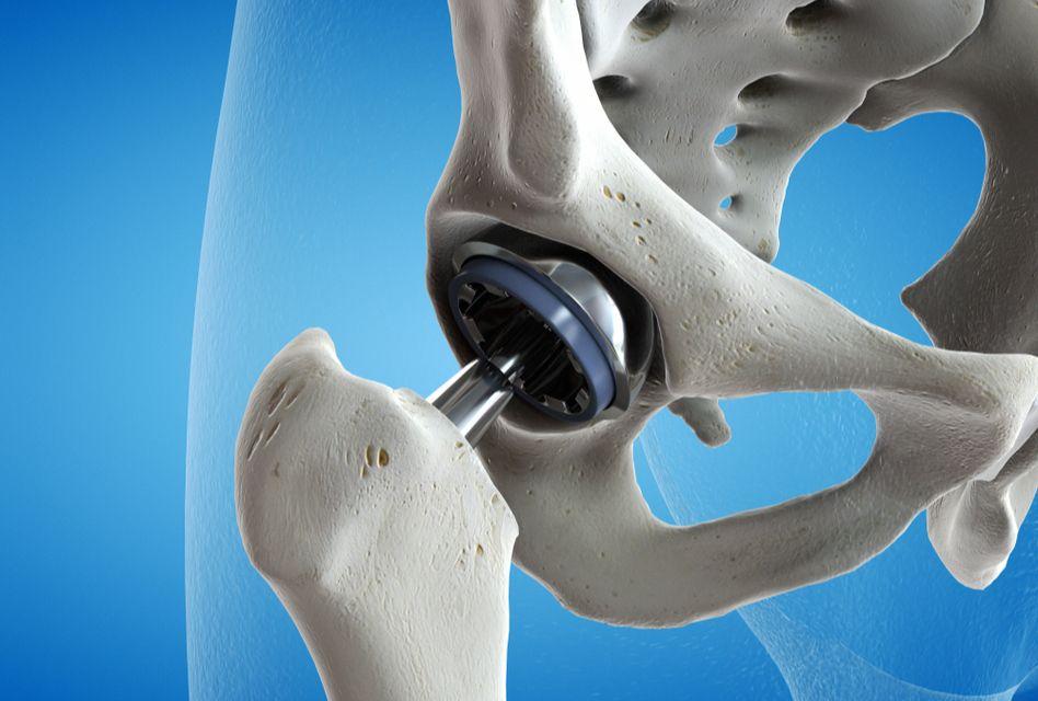 din care artroza articulației șoldului