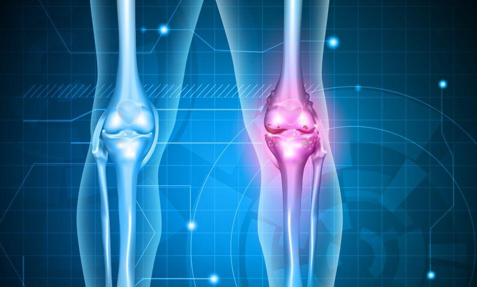 complex pentru artroza genunchiului boală comună comună în latină