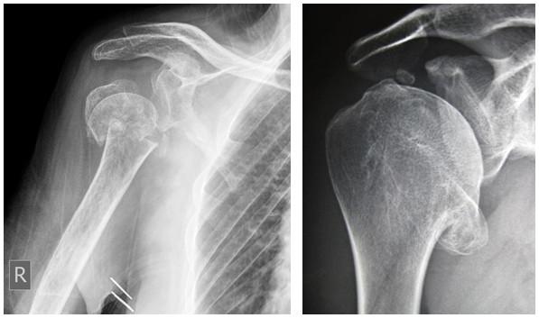 durere după artroplastia articulației umărului