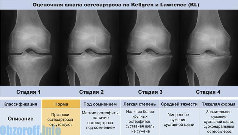 tratamentul celei de-a treia etape a artrozei