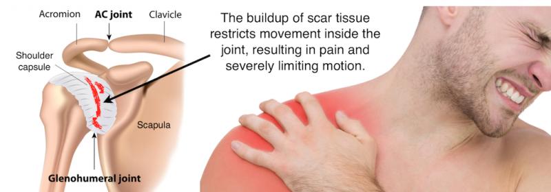 dureri de sold sau inflamatii artroza umăr-umăr