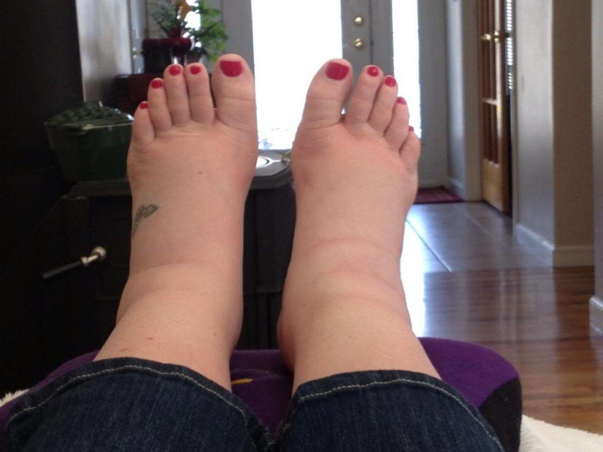 Insuficienta venoasa cronica: picioare umflate, dureroase si grele?