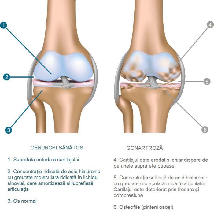 dureri de genunchi trăgând