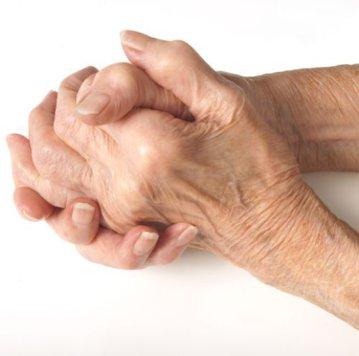 cum să vindecăm o mână pentru artrită
