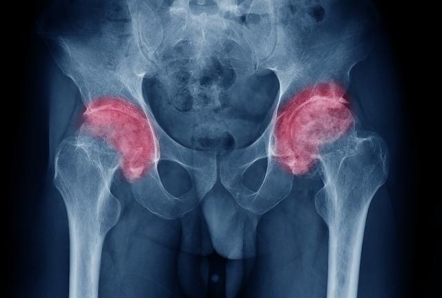 cauze ale artrozei șoldului