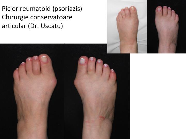 tratamentul leziunilor articulare ale piciorului capsule de artrită articulară