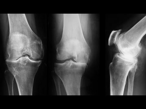 tratament cu artroza genunchiului de lut albastru