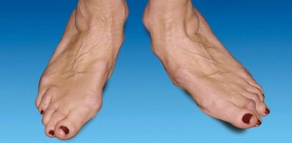 osteochondroza articulației genunchiului este