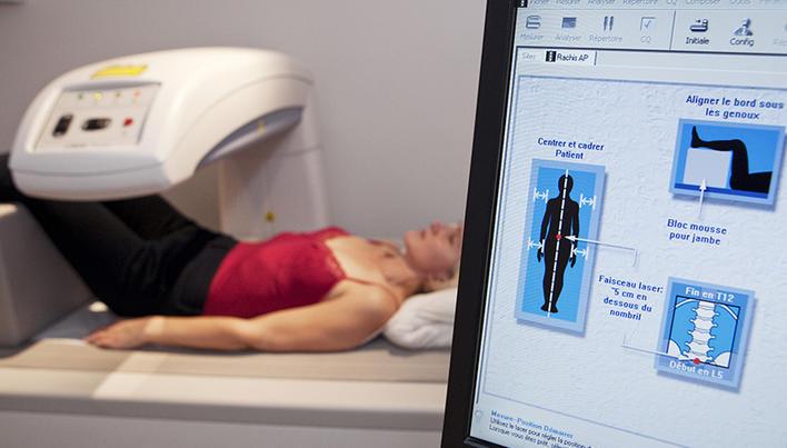 osteoporoza bolii osoase durere în articulațiile șoldului lupusului
