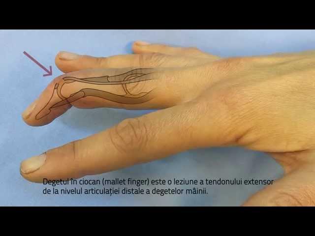 articulația pe deget doare după lovire