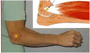 Epicondilita laterala (cotul tenismenului)