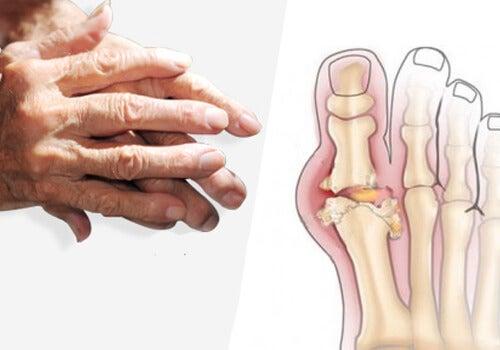 artrita pe tratamentul mâinilor tratamentul persoanelor cu artroza piciorului