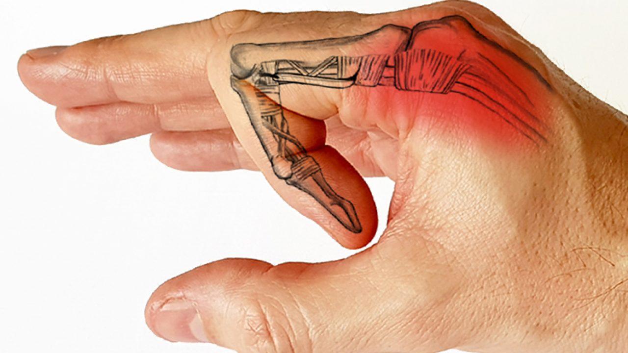 cum să tratezi o articulație dislocată a degetului articulații din genunchi de titan Preț