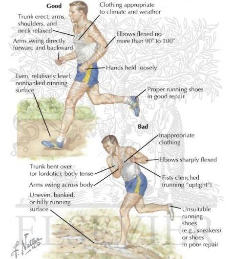 articulația doare după alergare cum se manifestă artroza articulației umărului
