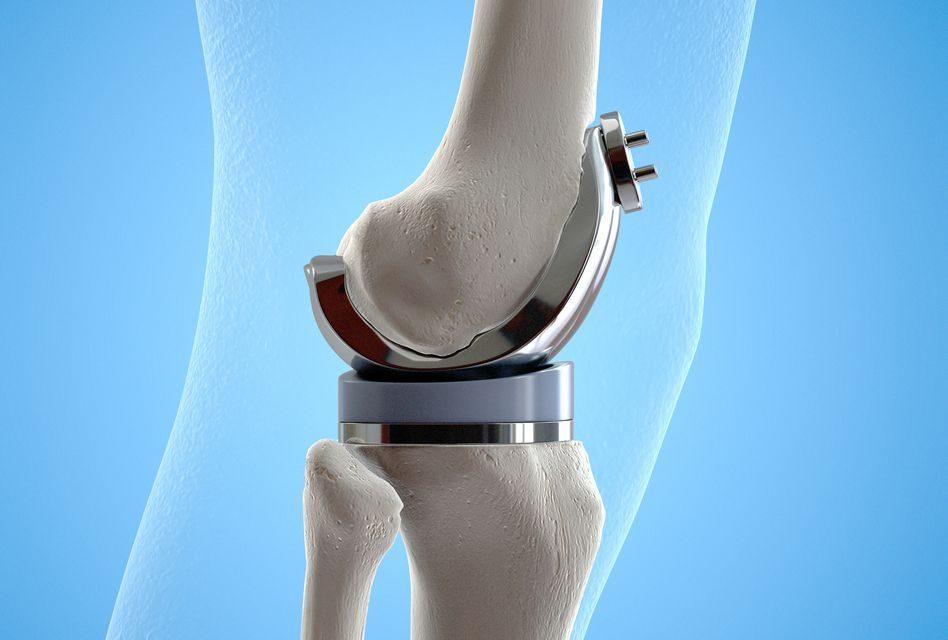 tratamentul artrozei genunchiului după accidentare