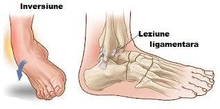 osul gleznei doare unguente pentru osteochondroza mâinilor