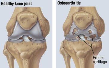 osteoartrita tratamentului tuturor articulațiilor
