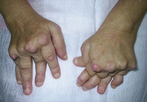 trei articulații afectate de artrită preparate pentru osteochondroza regiunii toracice