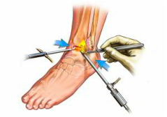 durere în articulațiile picioarelor cum să înțelegem articulațiile condroprotectoare