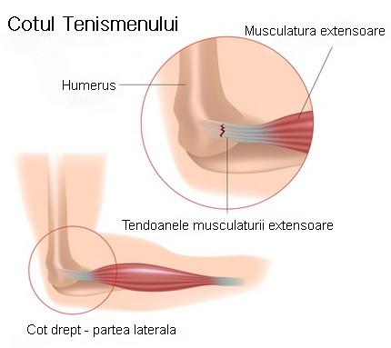 articulațiile umerilor mâinilor doare recuperarea leziunilor la cot