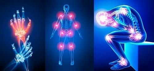 deteriorarea oaselor și articulațiilor umane poliartrita articulațiilor genunchiului