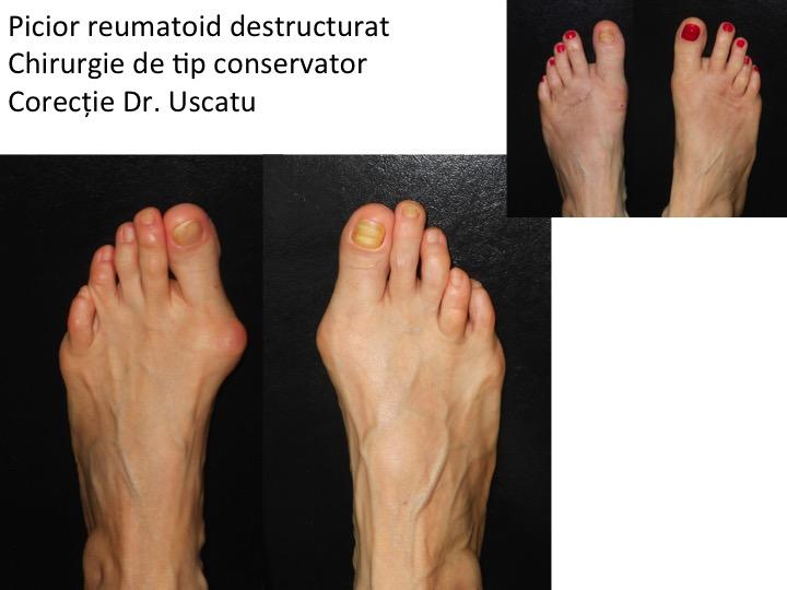 artrita pe 1 deget de la picior