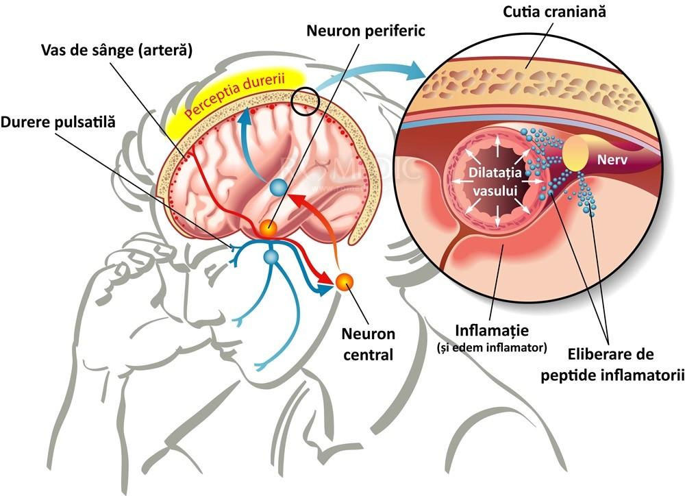 boli ale sistemului nervos și articulațiilor ligamentul cruciat anterior al articulației genunchiului