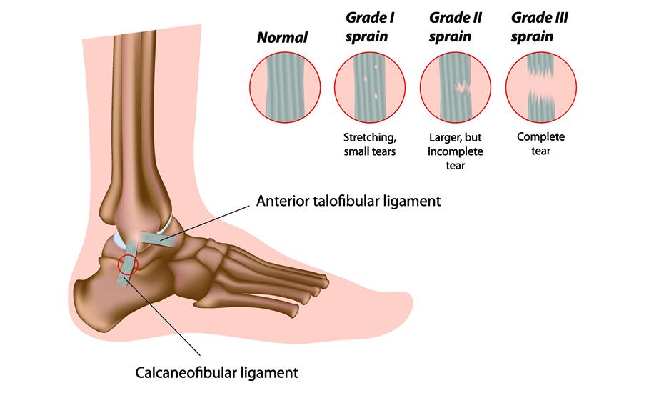 deteriorarea parțială a ligamentului gleznei artroza genunchiului recenzii vindecate