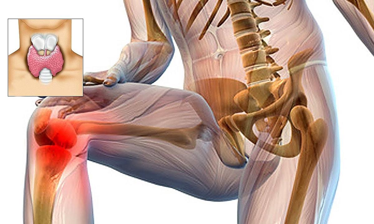 artroza bilaterală a genunchiului