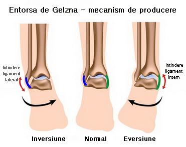 durere severă în articulația gleznei dacă este dureros sau articulații